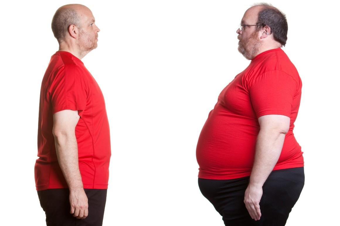 Obezite Hastalarında Kronik İshal Daha Çok Görülüyor